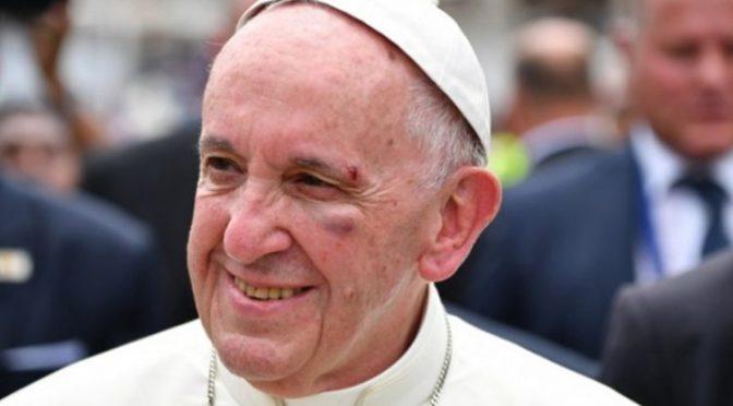 Τραυματίστηκε στο κεφάλι ο Πάπας Φραγκίσκος
